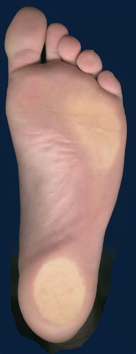 le a pied soin des ongles de pied hordain traitement probl 232 me de pied perrie odile
