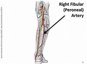 Right Fibular  Peroneal  Artery