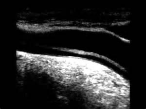 Carotid Artery Dissection Ultrasound