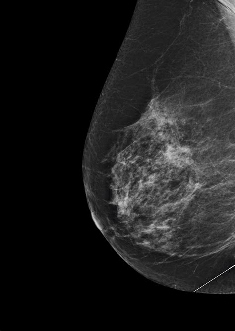 Signs of breast cancer are being hunted by artificial