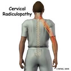 Cervical Radiculopathy Cervical Radiculopathy