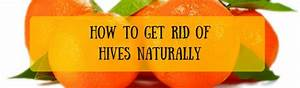 How To Get Rid Of Hives Naturally - A Listly List  Allergy Rid