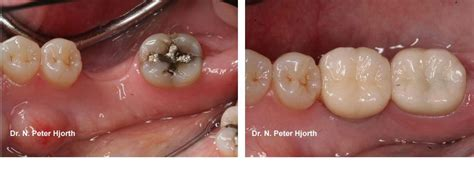 implant supported crowns dental implants peabody ma