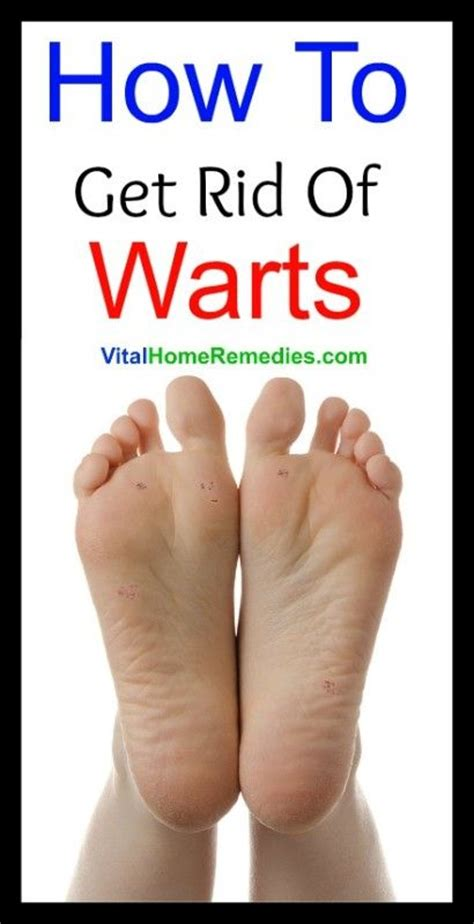 how to get rid of planters wart best 25 foot warts ideas on doterra essential