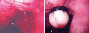 Endoscopic hemostasis techniques for upper gastrointestinal hemorrhage: A review  Ulcer Bleeding esophageal varices