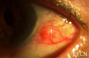 Conjunctival Tumors - New York Eye Cancer Center