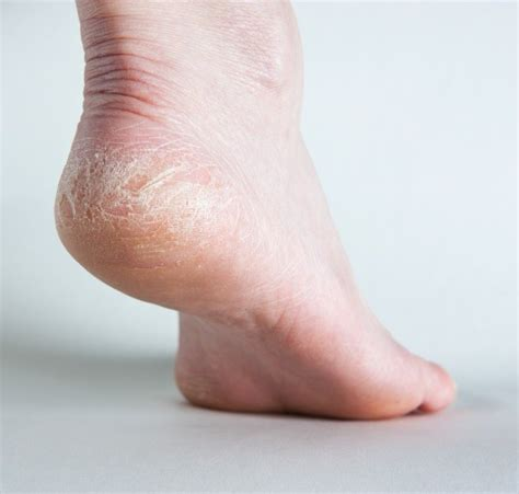 home remedies  dry  cracked feet thriftyfun