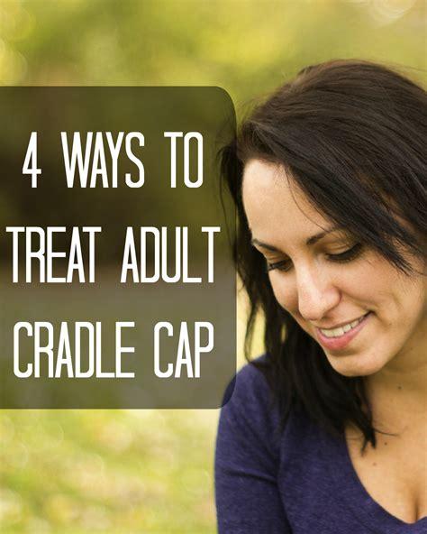 Treat Cradle Cap In Adults Talksacademicgq
