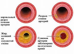 Систоло диастолическая артериальная гипертония