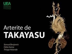 Arterite De Takayasu Pdf
