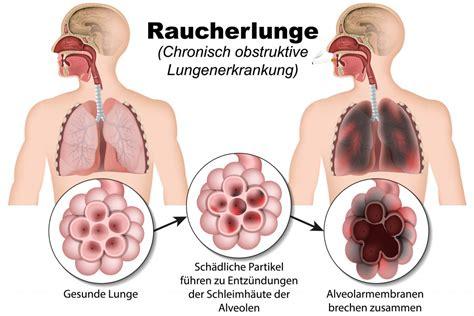 erste symptome lungenkrebs