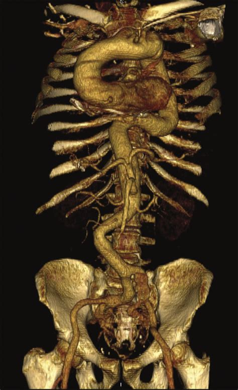 arterial tortuosity syndrome  multiple intracranial