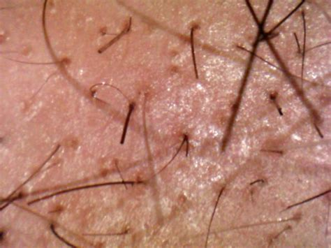 All The Hair Our Body Including Pubic Follows Natural