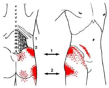 quadratus llumborum pain patterns