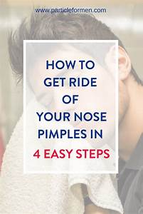 How To Get Rid Of Nose Pimples In 4 Easy Steps In 2020