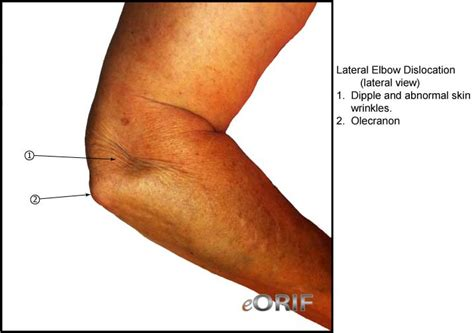 Elbow Dislocation S53.006A 832.00 | eORIF