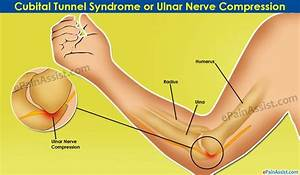 25 Best Images About Cubital Tunnel Syndrome On Pinterest