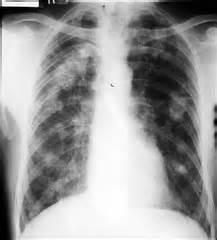 restrictive lung disease flashcards quizlet