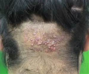 AKN Bumps on the Back of the Head Surgical Cure By Dr Umar