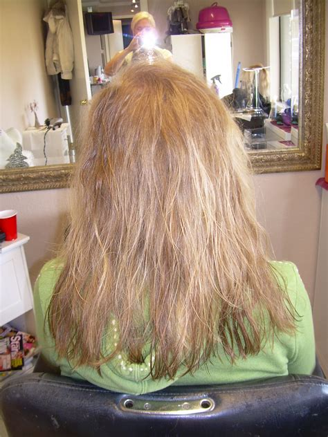 My Hair Is Hair Thin After Weave Hair Extensions Thinning