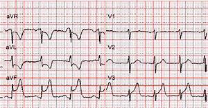 Dr  Smith U0026 39 S Ecg Blog  Inferolateral Stemi  Is There Right