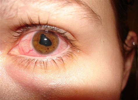 8 Common Eye Problems And How Lingzhi Helps  Natural. Payday Loans In Round Rock Texas. Latissimus Flap Surgery Mazda 3 Skyactiv 2013. Cash Rewards Credit Cards Sbi Cash Back Offer. Immigration Attorneys Houston. Cpa Requirements Michigan South Bend Dentist. Mapfre Travel Insurance Odds Of A Hole In One. Bipolar Disorder Treatment Options. Best Accounting Colleges Programming A Key Fob
