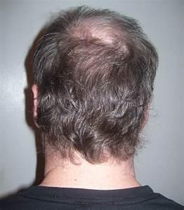 File:Back of man's head.jpg - Wikimedia Commons