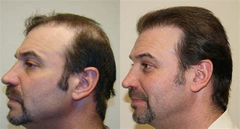 Sportsmen with Hair Loss | The Idle Man