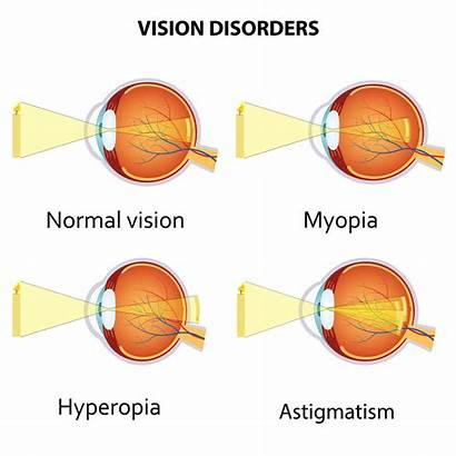 Myopia Astigmatism Hyperopia Vision Eye Sighted Near