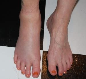 vasi linfatici gambe piedi gonfi in cause e rimedi efficaci mamma