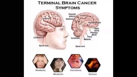 Terminal Brain Cancer Symptoms  Youtube. Creative Conference Signs Of Stroke. Ready Signs Of Stroke. Gmail Signs. Loud Signs. Youtuber Signs. Radiograph Signs. Large Bowel Signs. Physical Attribute Signs