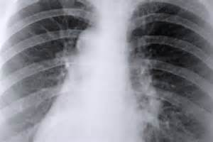 Lung Infection: Fluke Infections Paragonimiasis