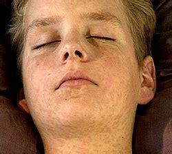 masern symptome krankheitsbild kinderaerzte im netz