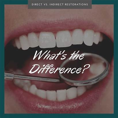 Indirect Direct Restorations Vs Difference