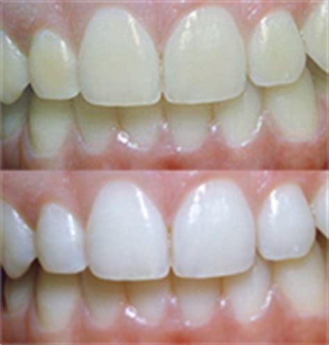 blanchiment dentaire 224 montpellier