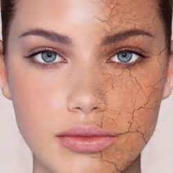How to Deal With Dry Skin on Face   Style Samba