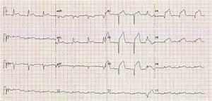 Anterior St Elevation Myocardial Infarction  Stemi