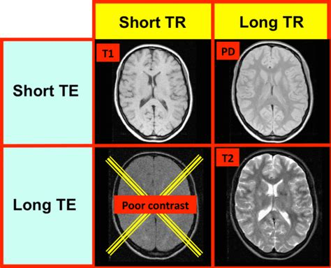 Proton Density Weighted Mri by Image Contrast Questions And Answers In Mri