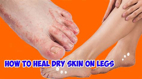 how to heal skin on legs healthy wealthy