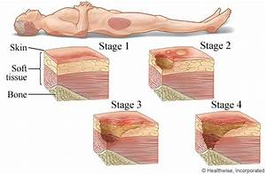 stages of pressure sores With bed sores stage 1