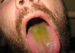 Green Tongue Coating Causes, Symptoms, Diagnosis, In Baby, Sore ...  Thrush Acupuncture