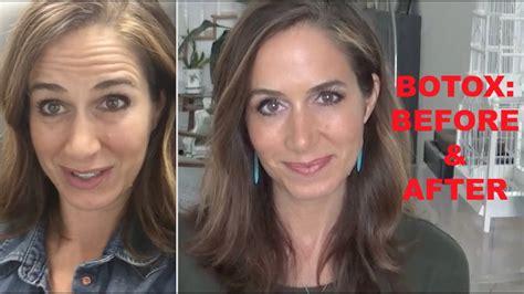 botox amazing   video youtube