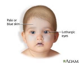 shaken baby symptoms medlineplus encyclopedia image
