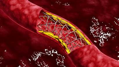 Blood Vessel Damage Disease Reverse Diabetes Drugs