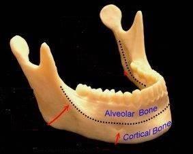 Cortical Bone Teeth | www.pixshark.com - Images Galleries ...