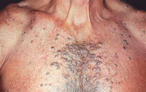 multiple pigmented nodulesquiz case acne jama
