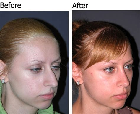 Best Rhinoplasty Surgeon In America. Commercial General Liability Insurance Companies. How Do You Help A Drug Addict. Storage Units Vancouver Wa Sams Town Killers. Day Trading Courses Online Open Source Ip Pbx. Psychics In Syracuse Ny Contacts Lenses Canada. How To Trade Currency Futures. Blue Cross Blue Shield Long Term Care. Department Of Rehabilitation