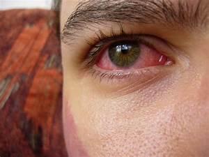 I migliori rimedi per gli occhi rossi e il prurito