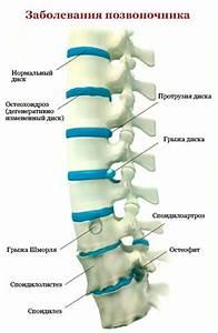 Какой препарат эффективен при лечении остеохондроза