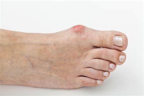 hallux valgus et oignon de pied comment traiter la douleur